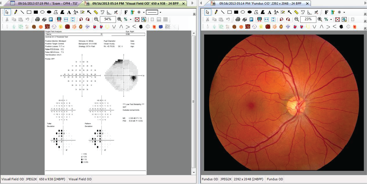 ophthalmology specific EHR content